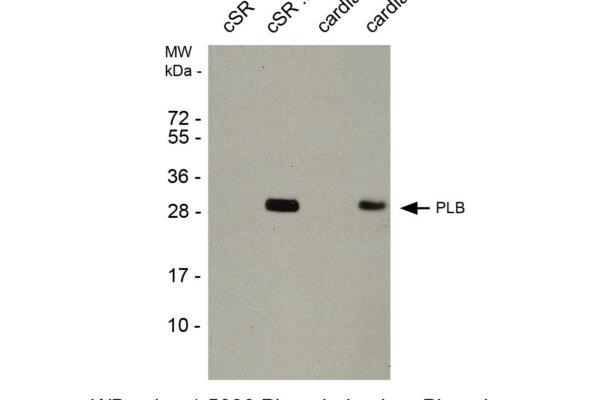 phospholamban pab plb