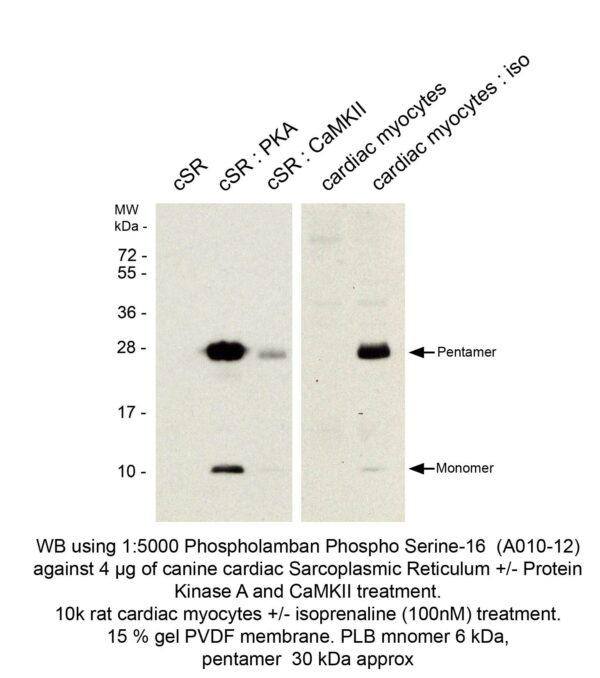 phospholamban pab serum