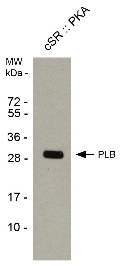 phospholamban pab2 csr