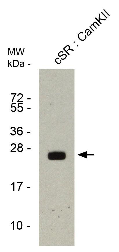 phospholamban pab1 csr