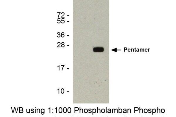 phospholamban pab csr