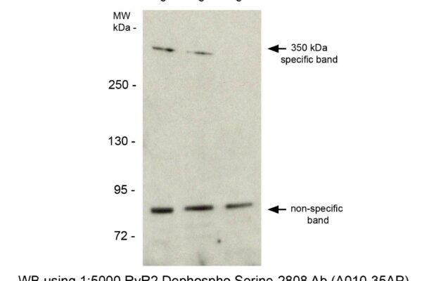 ryanodine receptor 2