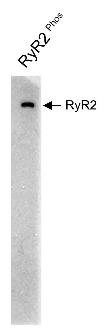 ryanodine receptor 2 pab