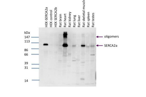 serca2b pab serum